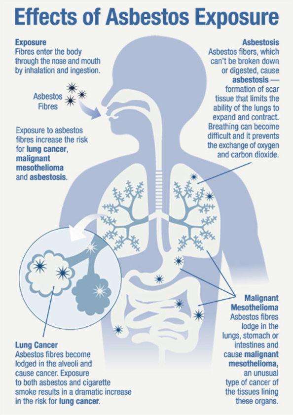 Effects of asbestos exposure